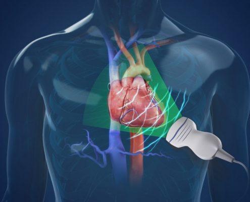 Echocardiogram MedAlliance Cardiology Albury Wodonga Heart Specialist